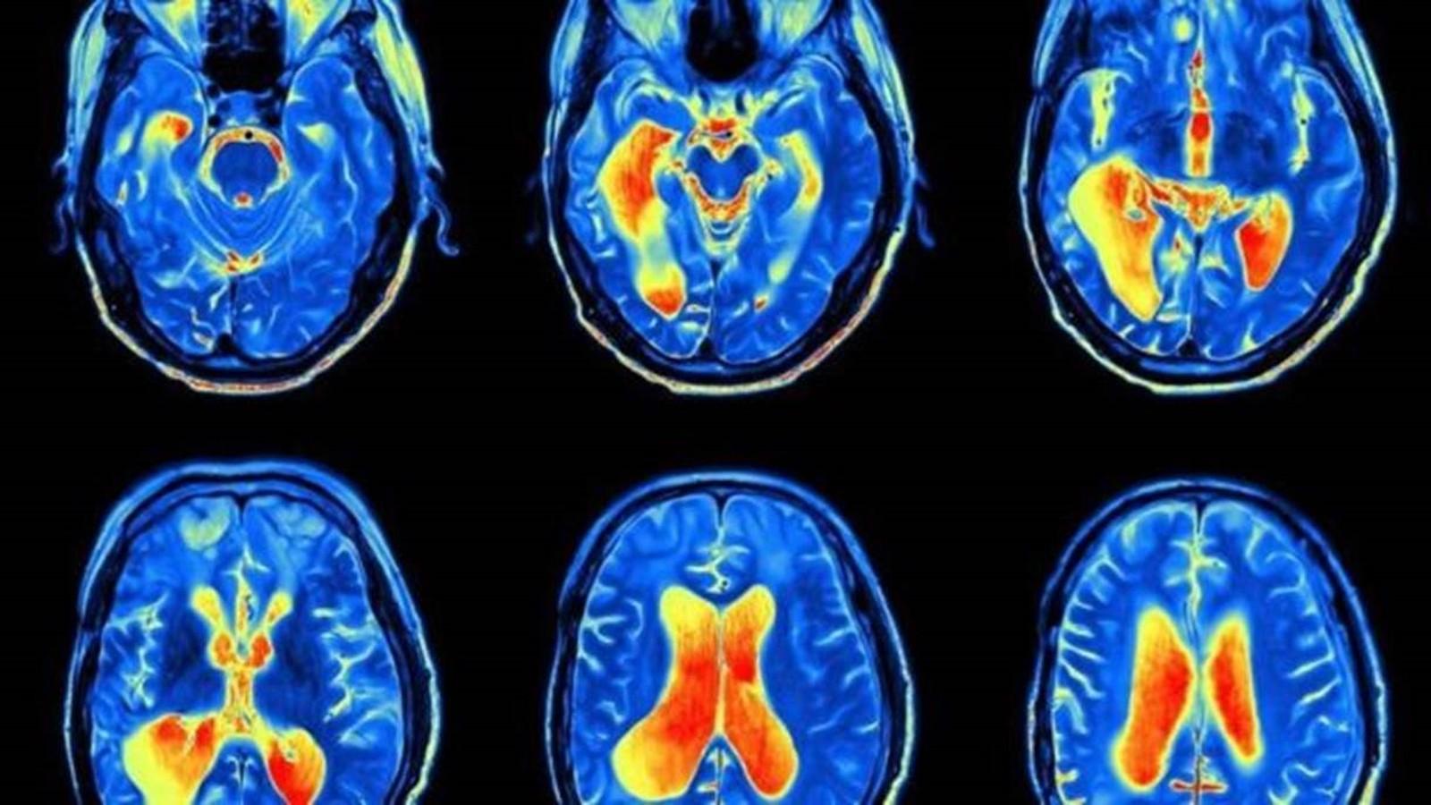 A perda de líquido cefalorraquideano afeta a cinco a cada 100.000 pessoas por ano (Foto: Istock)